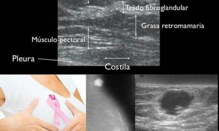 Prevención del Cancer Mamario. Auto examen de la mama, ultrasonido mamario y mamografía.
